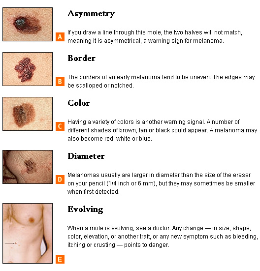 skin-cancer-warning-signs